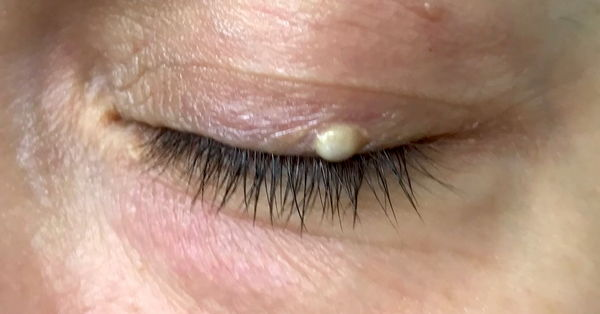 A Whitish To Yellowish Bump Or Pimple On The Eyelid Image Photo